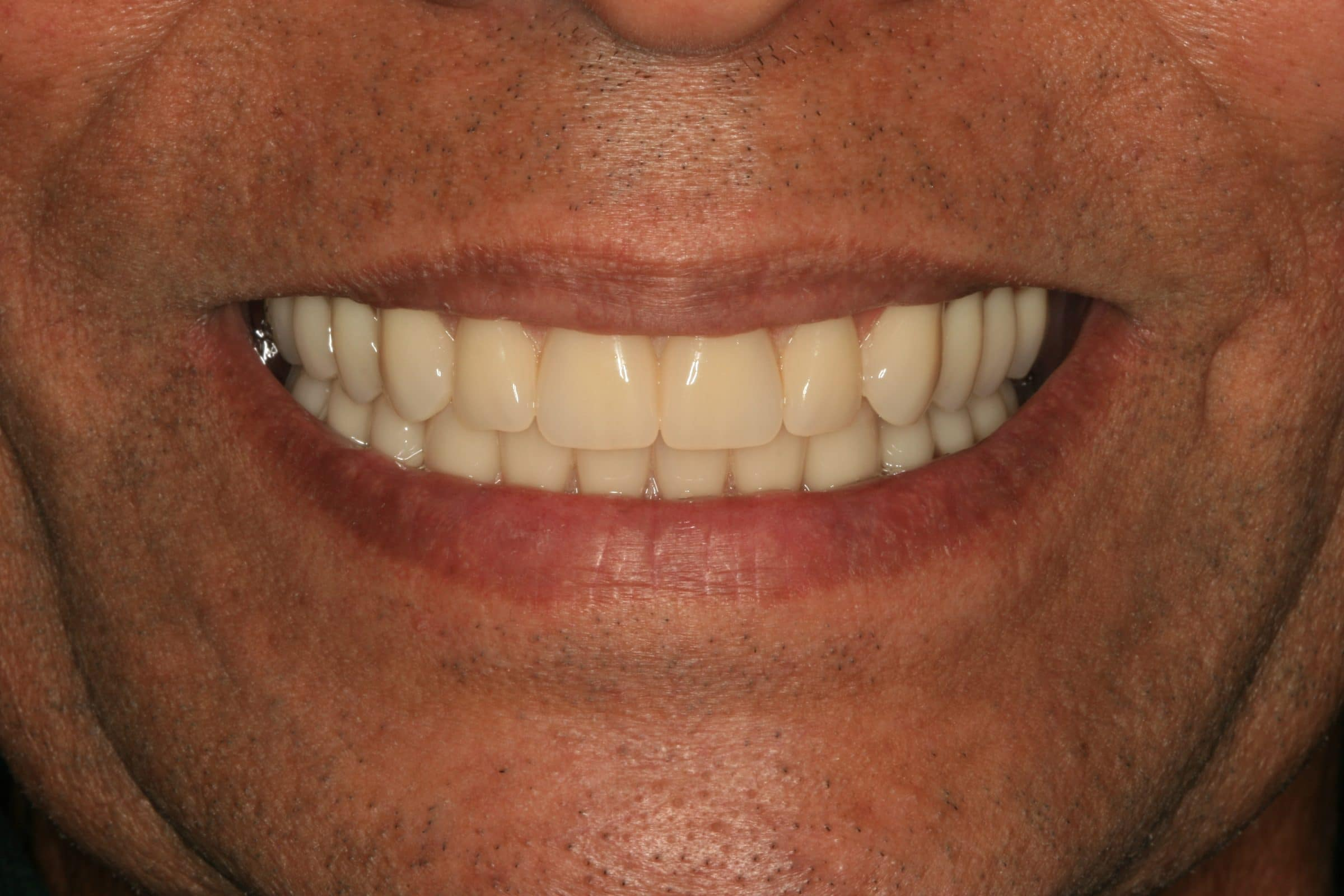 Not present. dentures that look natural teeth abstract thinking