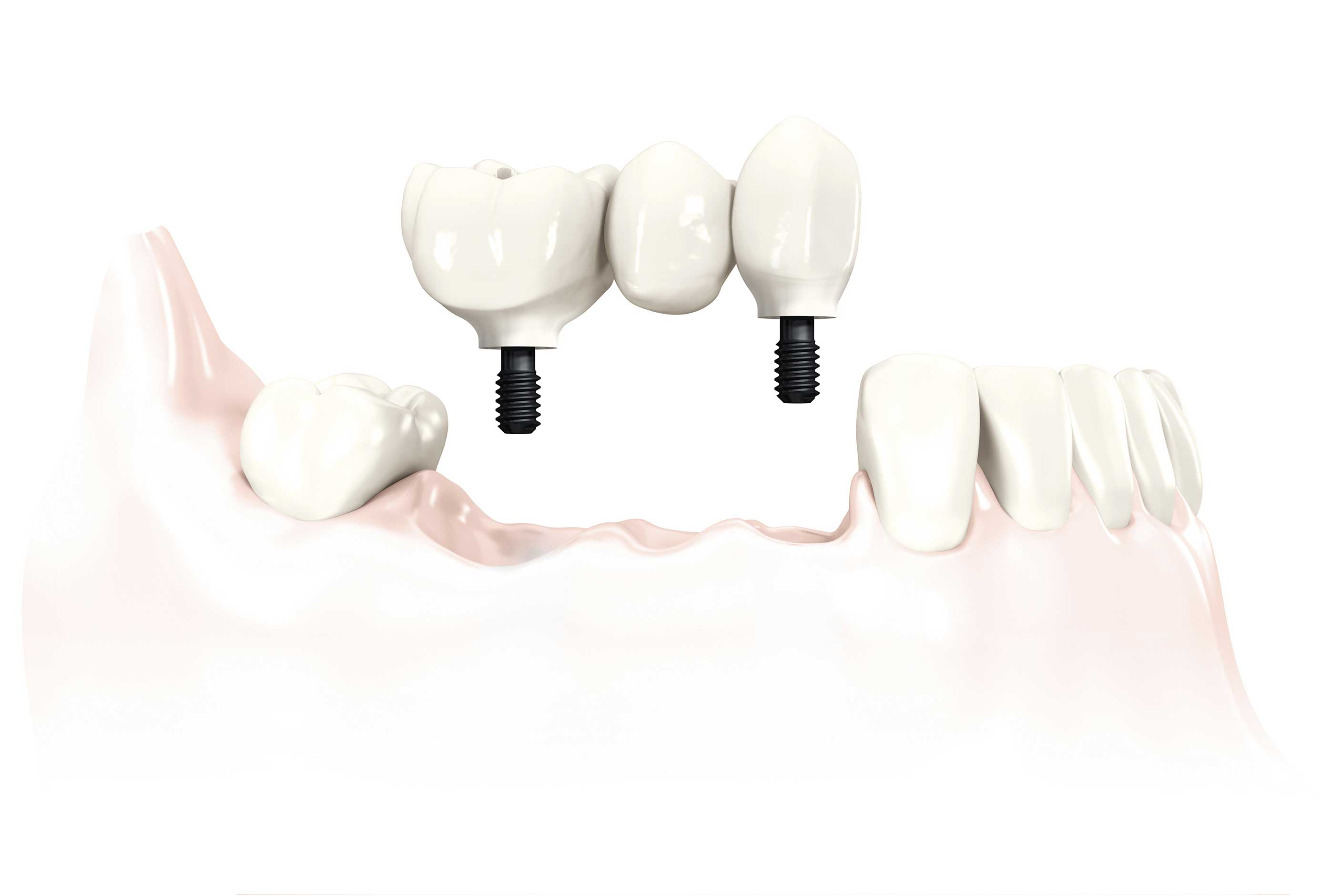 multiple dental implant - Dental 359