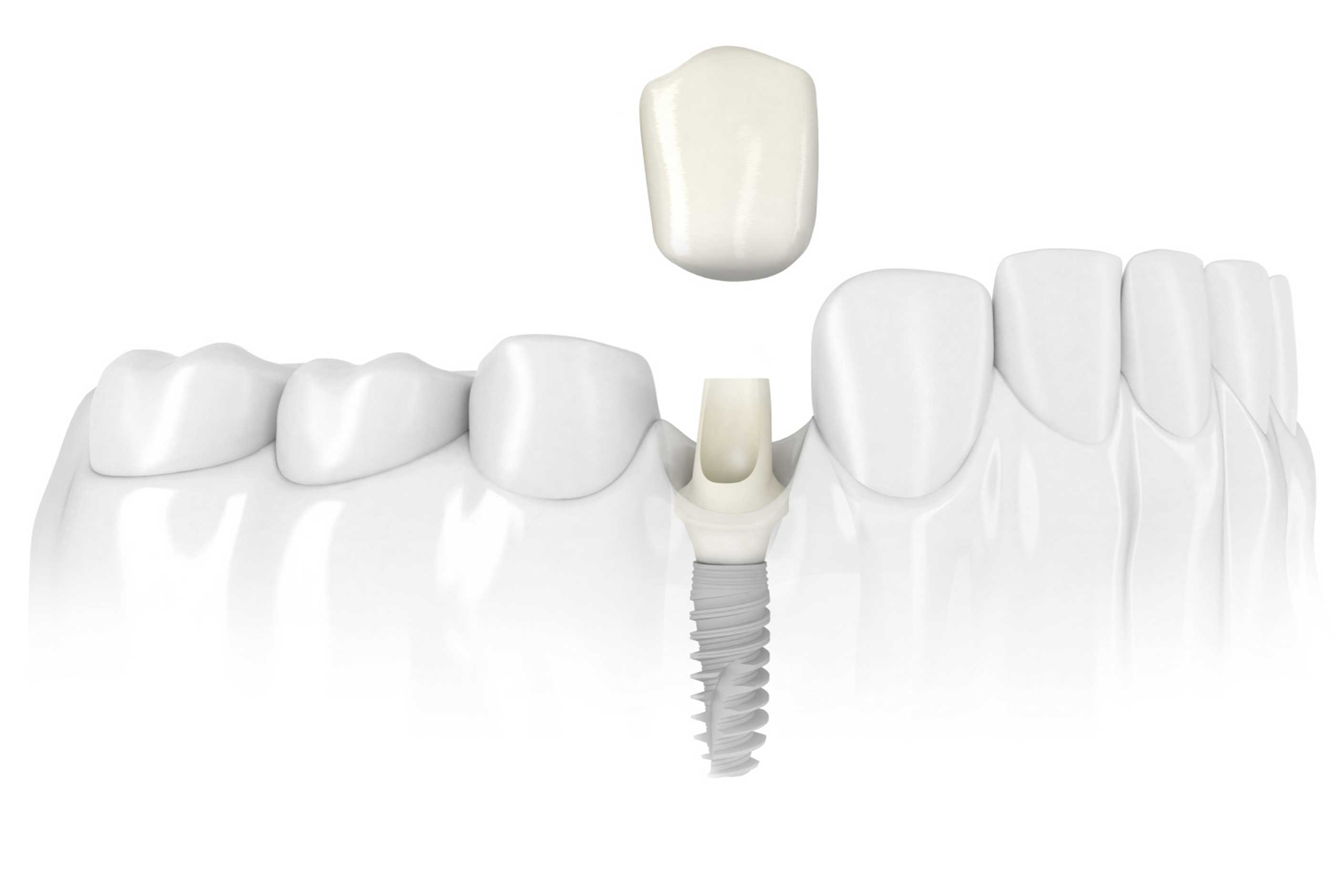 Single Dental implant - Dental 359
