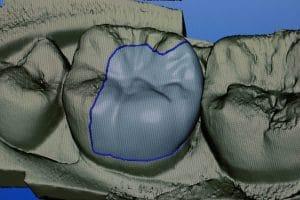 Intra-oral camera CEREC