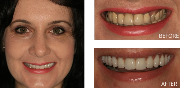 patient before and after all on 4 dental implant