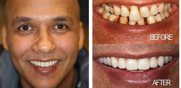 The Smile Makeover Process Costs Less Than You Think - Dental 359