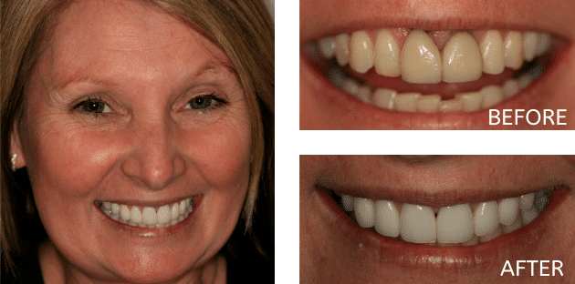 patient before and after smile makeover treatment