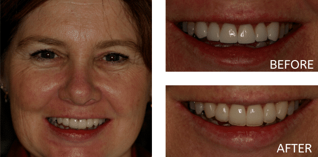 patient before and after natural smile enhancement