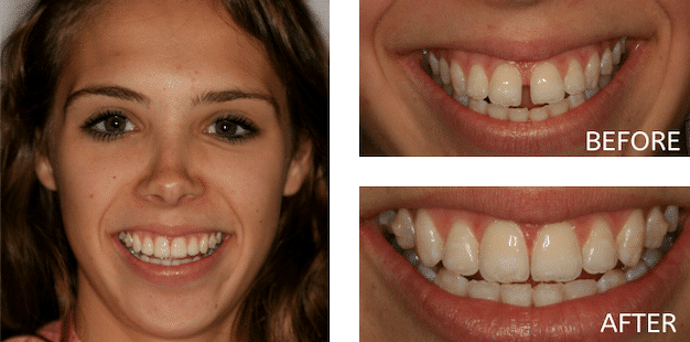 patient before and after invisalign treatment