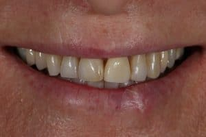 discoloured teeth before porcelain veneers