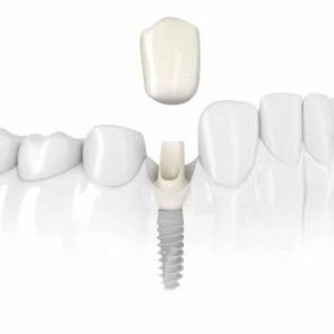 single-crown-zr-abutment-nobelactive